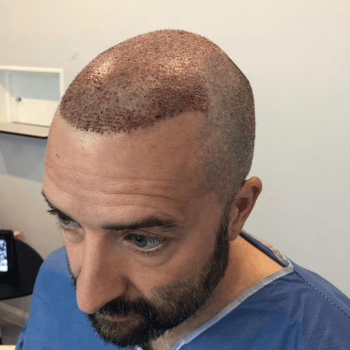 A Better Hair Transplant Clinics patient immediately following a hair transplant surgery procedure