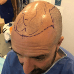 A Better Hair Transplant Clinics patient undergoing final preparation before their hair transplant surgery