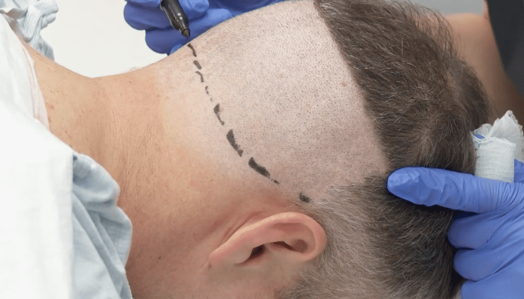 Rear of the scalp being prepared for use in hair transplant surgery