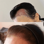 A transgender patient following on from having hair transplant surgery performed to create a more natural hairline
