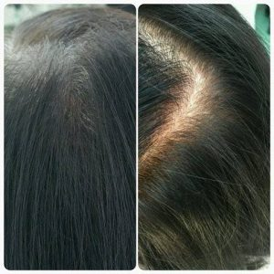Scalp micropigmentation treatments for women are mainly designed to hide the appearance of balding or thinning areas by creating the illusion of depth and shadow