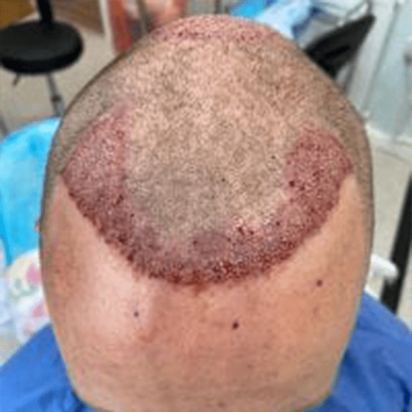 Immediate results of a hair transplant performed to create a new hairline