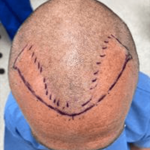 New hairline marked out on patients temple prior to a hair transplant surgery being performed