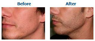 Beard transplants can be performed to fill in gaps and patchy areas where there is little to no hair growth