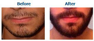Beard transplants are often performed to give a fuller and thicker appearance to the facial hair