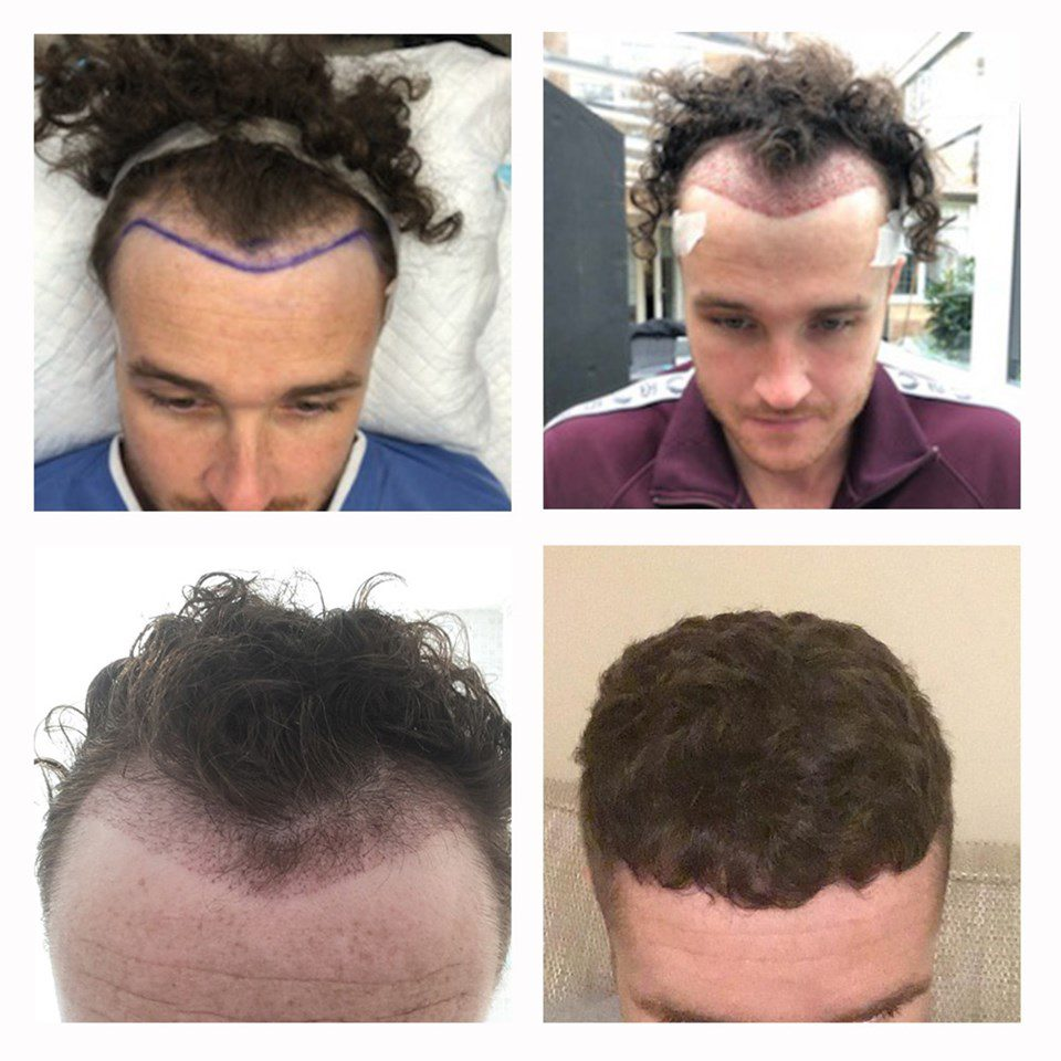 The FUE hair transplant procedure can be performed to all areas of the scalp, but most commonly is performed to provide patients with a new hairline