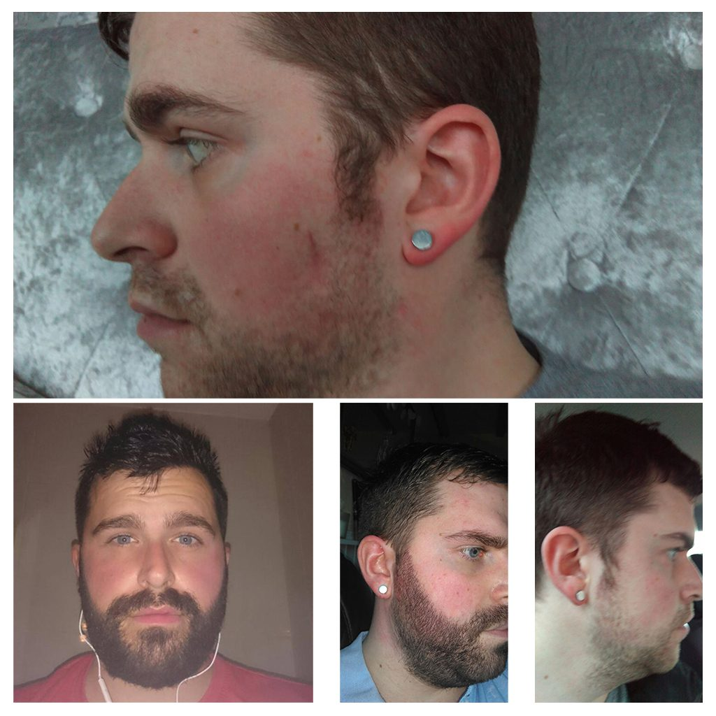 Beard transplants can make a huge difference to the facial hair, filling in gaps and ensuring there is no patchy growth