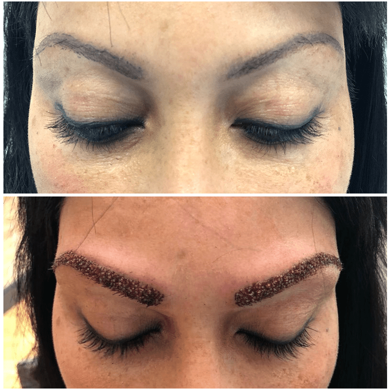 Eyebrow transplants for women are among some of the most popular treatments that we perform, allowing you to achieve perfect looking eyebrows without the need to apply makeup daily