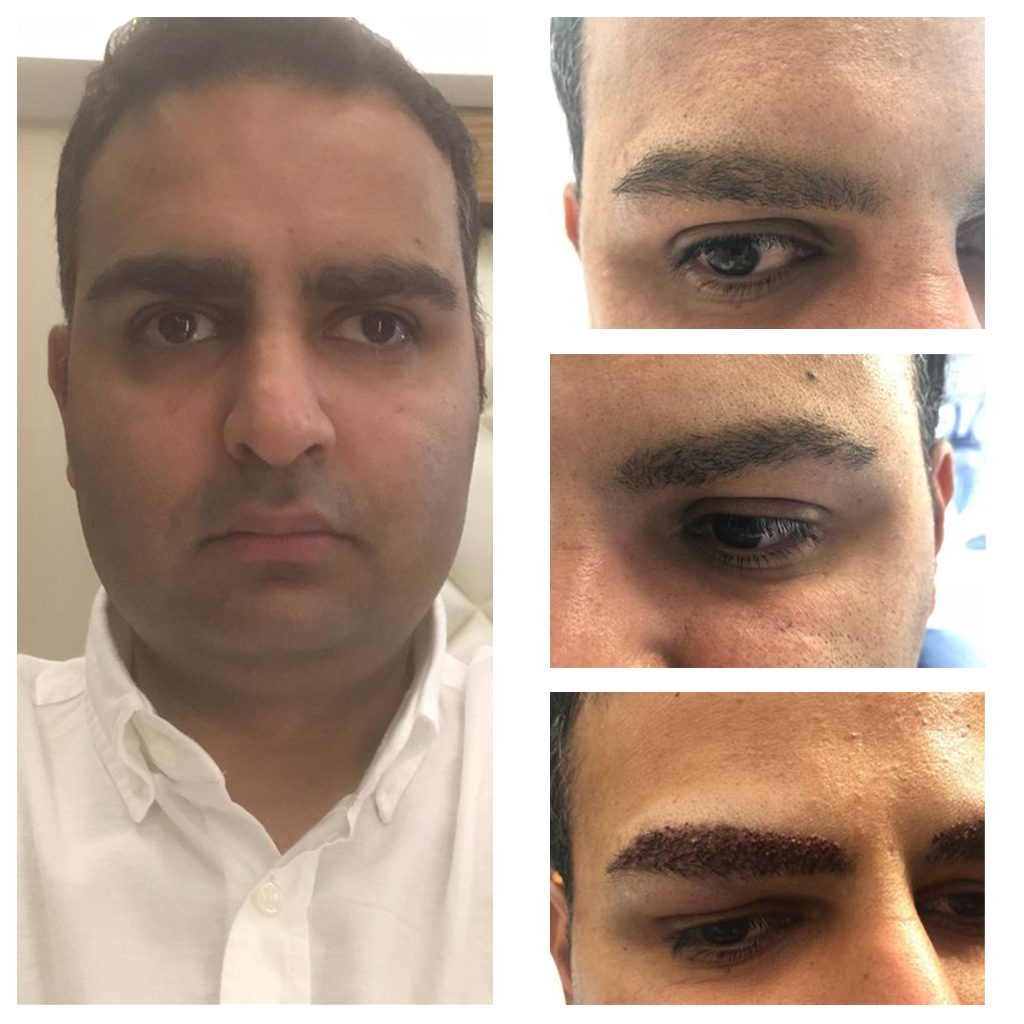 Male eyebrow transplant procedures can be performed to ensure that the eyebrows are symmetrical, or simply to just give them a natural appearance