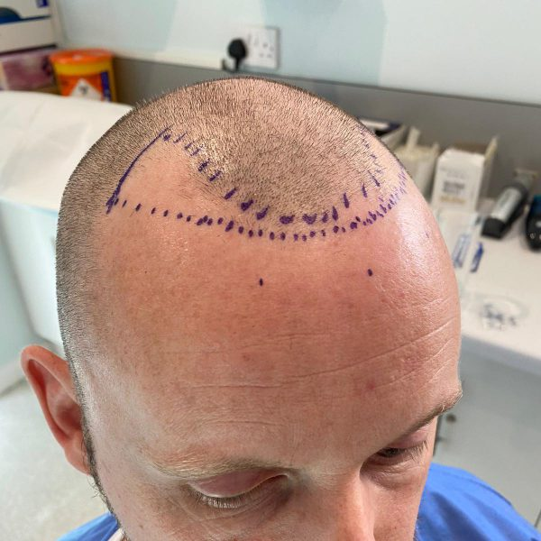 The area to be treated during an FUE hair transplant is marked out prior to the surgery