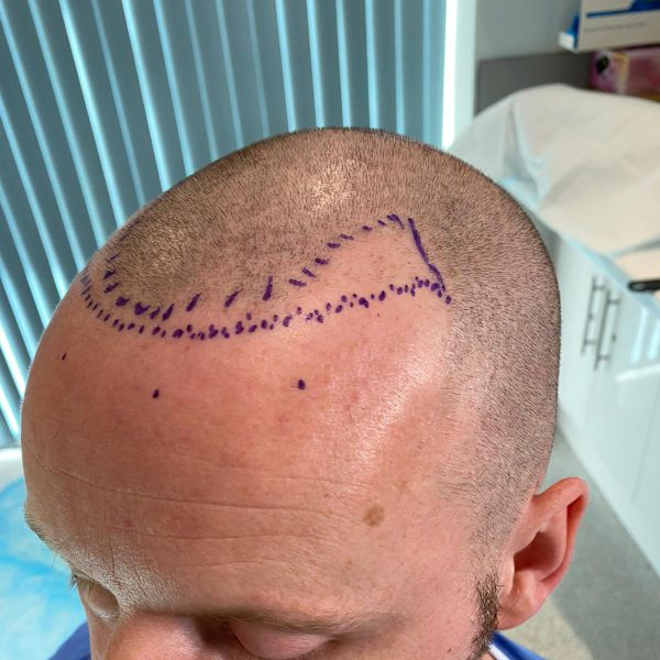 Visual representation of where the new hairline will be following on from an FUE hair transplant surgery