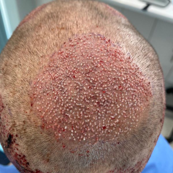 FUE hair transplant surgery performed to the crown of the head to fill in a balding area