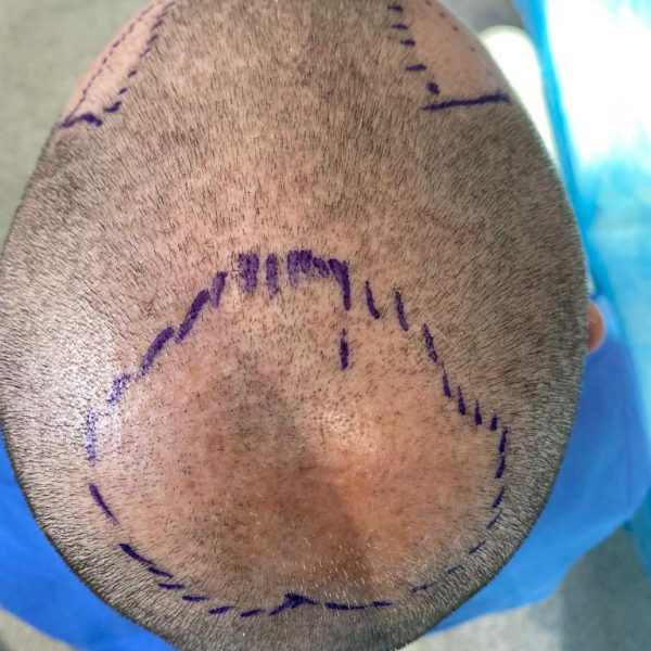 Preparation for an FUE hair transplant surgery including marking and shaving the affected area