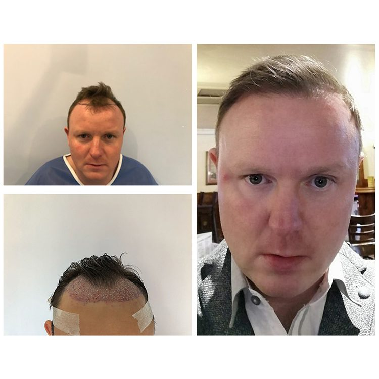 When losing your hair, the FUT hair transplant surgery is capable of giving your scalp a new lease of life and providing you with a completely natural looking hairline