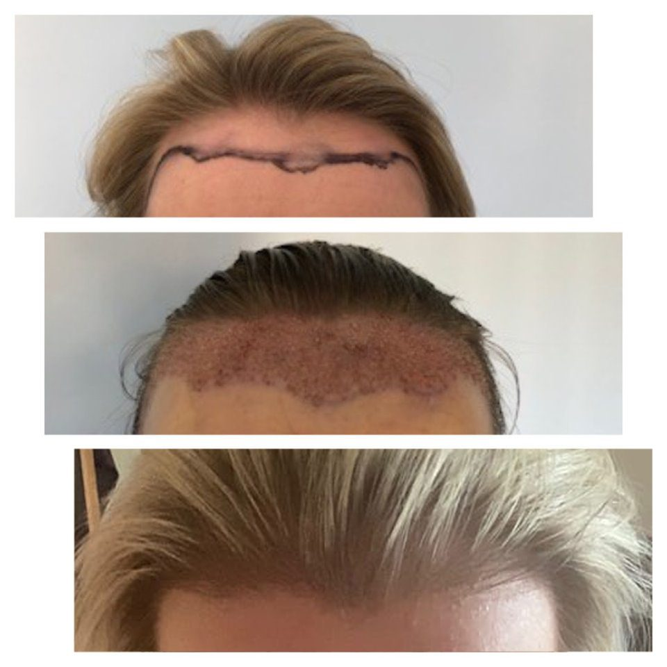The FUT hair transplant procedure is capable of being performed on both men and women to provide drastic results