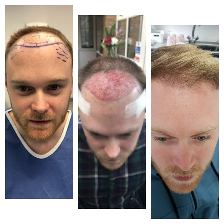 FUE hair transplants for men provide completely natural and indistinguishable results to the naturally existing hair around it