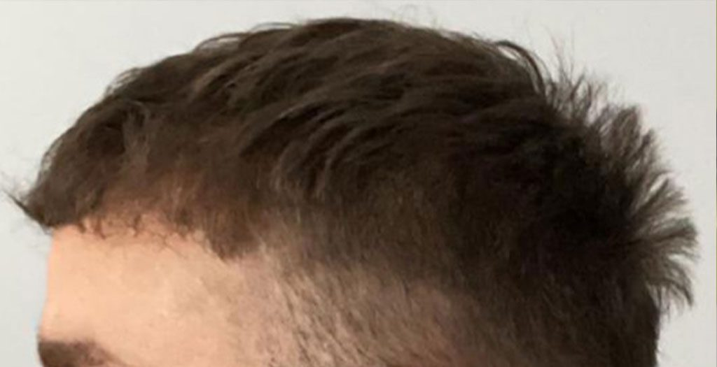 Hair transplant procedures are performed to fill in areas where there is little hair growth