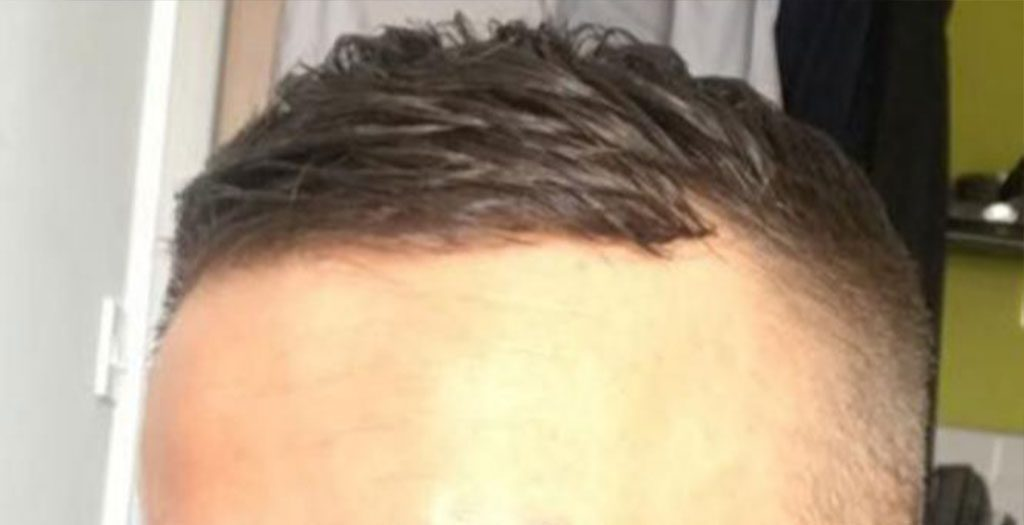 Before a hair transplant surgery, the receding hairline is visible even beneath the styling to cover it