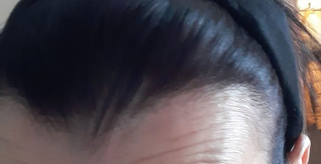Completely natural and authentic looking hairline that was created during a hair transplant surgery