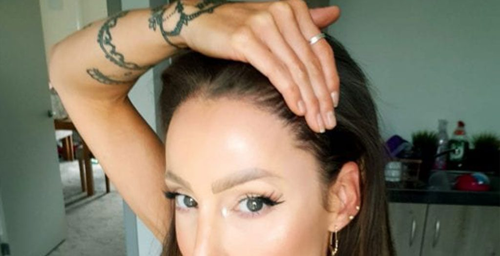Hair transplants for women are generally only considered when there are no other options to renew the hair growth