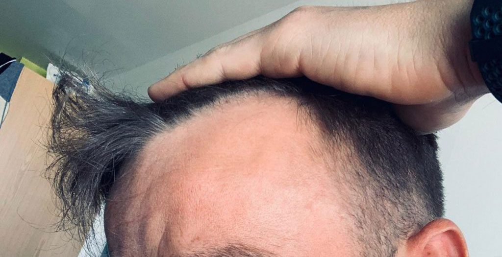 Male pattern baldness generally starts with a receding area around the temples
