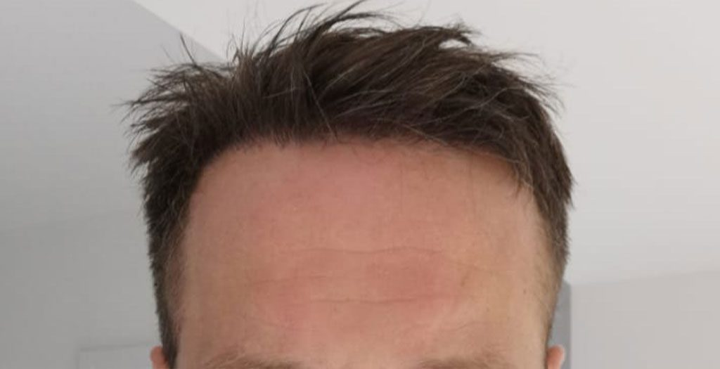 Results showing the new hairline after 6 months have passed from the hair transplant procedure