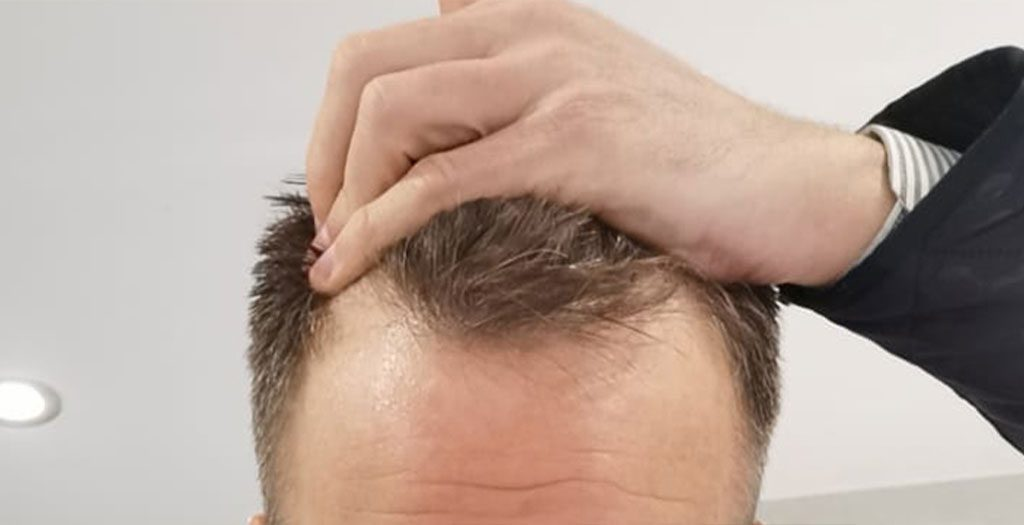 Male pattern baldness commonly occurs as a hairline that recedes around the temples, causing the necessity to undergo transplant surgery