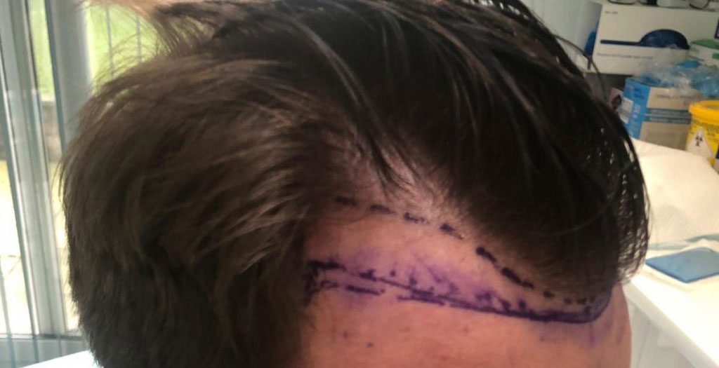 The receding hairline and desired hairline are clearly marked out before the hair transplant procedure is carried out