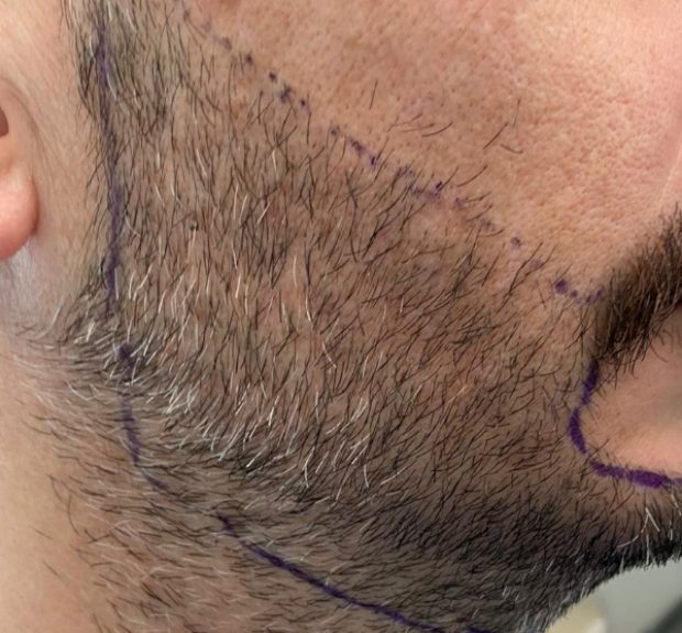 Beard transplant surgery is capable of providing you with the beard that you've always dreamt of