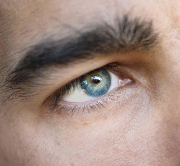 Eyebrow transplant surgery is performed to add new growth in the brow area which is one of the focal points of the face