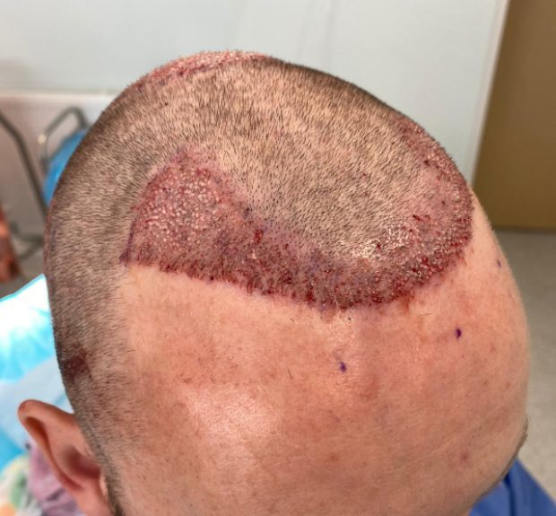 FUE hair transplants are capable of creating a brand new hairline