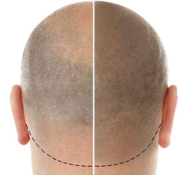 Scalp micropigmentation treatments for men give the appearance of a freshly shaven head of hair to mask the appearance of baldness